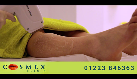Cosmex Clinic - Laser Hair Removal